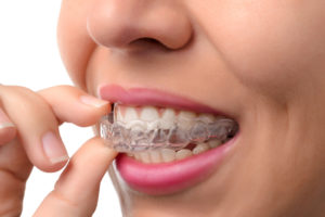 invisalign clear braces - orthodontist